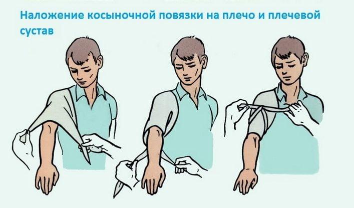 Наложение косыночной повязки
