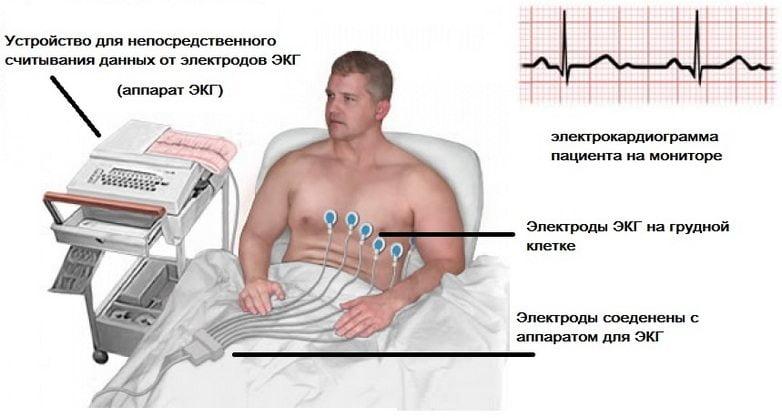 Изображение - Ревматическое воспаление суставов Revmaticheskij-artrit-chto-eto-takoe