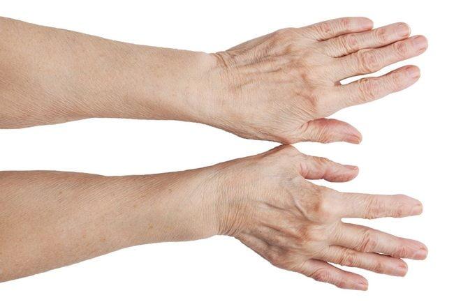 Шишки на пальцах рук: причины и лечение, профилактика