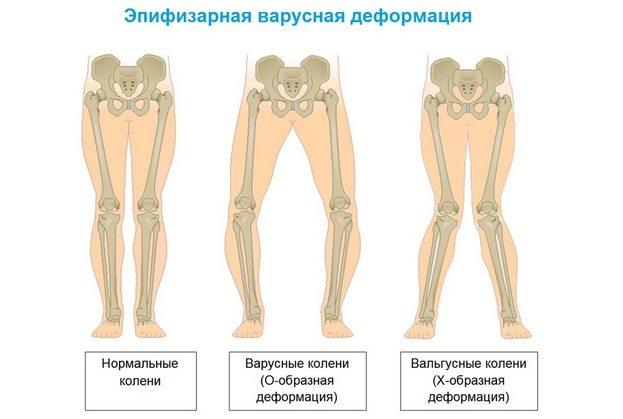 Эпифизарная варусная деформация