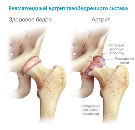 Ревматоидный артрит тазобедренного сустава