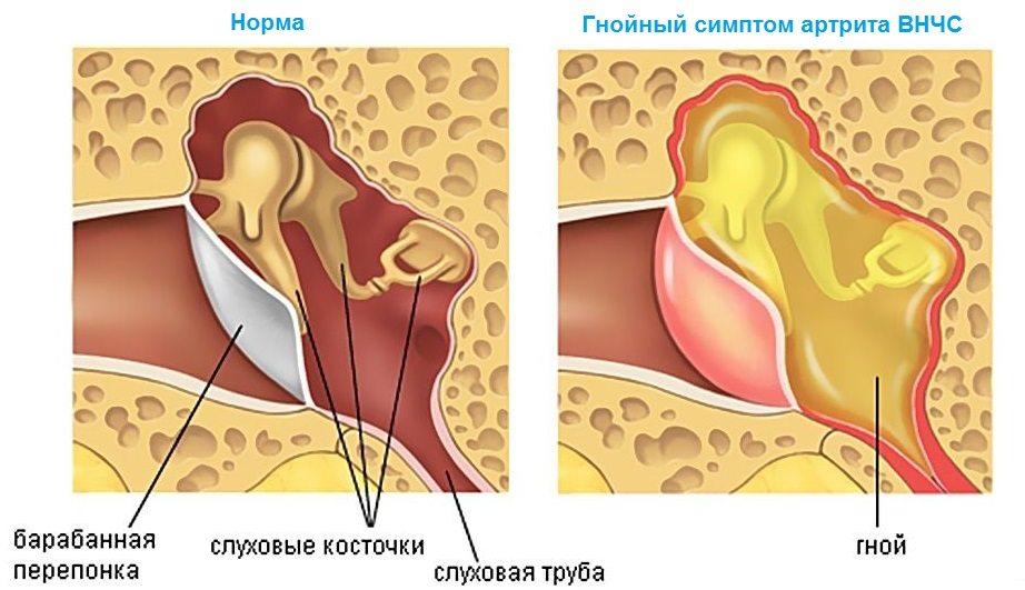 Гнойный артрит челюсти