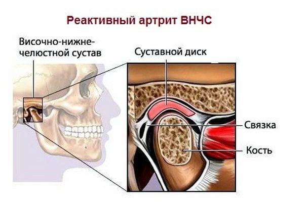 Реактивный артрит ВНЧС