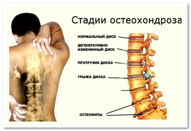 Хондропротекторы при остеохондрозе позвоночника