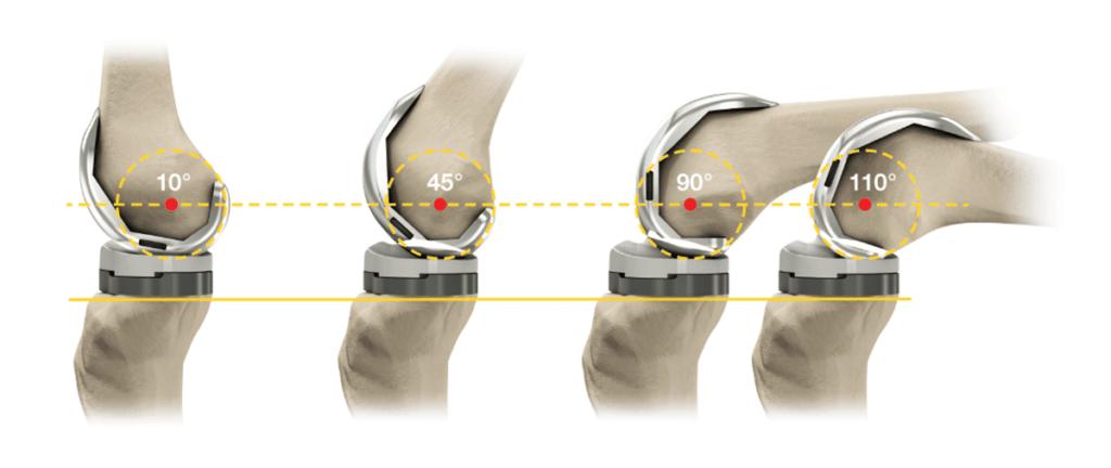Изображение - Как выглядит искусственный коленный сустав %D0%B0%D0%BC%D0%BF%D0%BB%D0%B8%D1%82%D1%83%D0%B4%D0%B0-1-1024x432