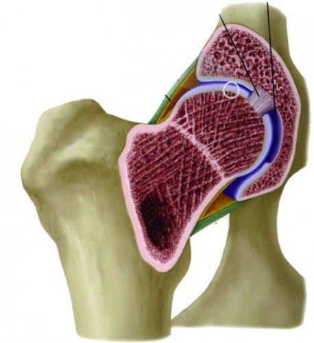 Как проводится вытяжение тазобедренного сустава при коксартрозе