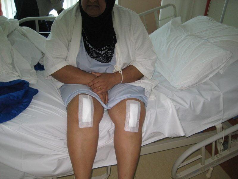 Изображение - Восстановление после замены коленного сустава %D0%B2-%D0%BF%D0%B0%D0%BB%D0%B0%D1%82%D0%B5