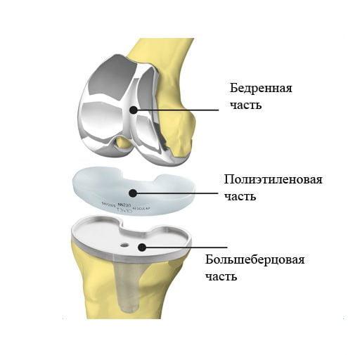Что такое эндоскопическая операция по замене коленного сустава