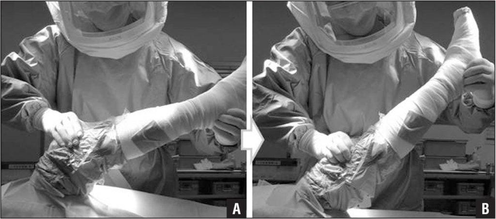 Воспаление сустава после эндопротезирования колена
