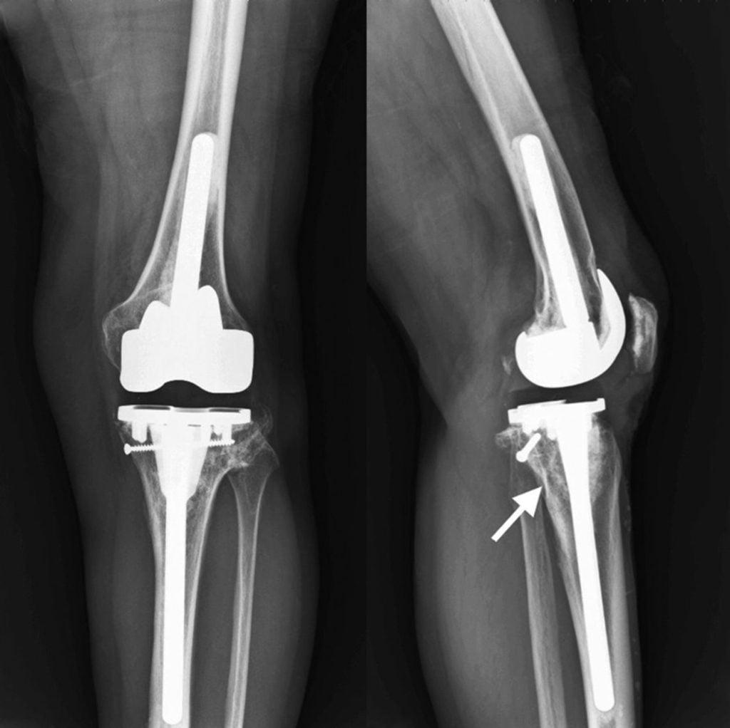 Одномыщелковое и тотальное эндопротезирование коленного сустава