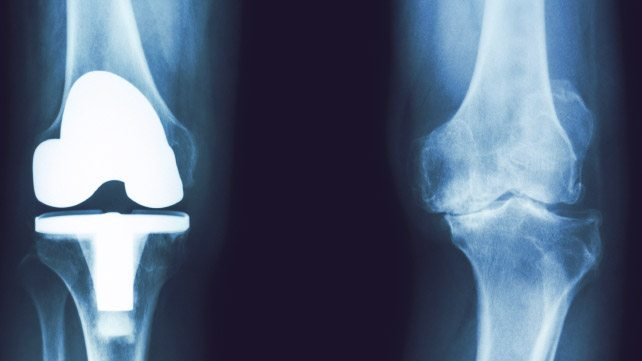 Изображение - Результаты мрт коленного сустава расшифровка %D1%80%D0%B5%D0%BD%D1%82%D0%B3%D0%B5%D0%BD