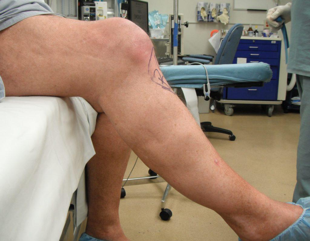 Осложнения после эндопротезирования коленного сустава плотный отек