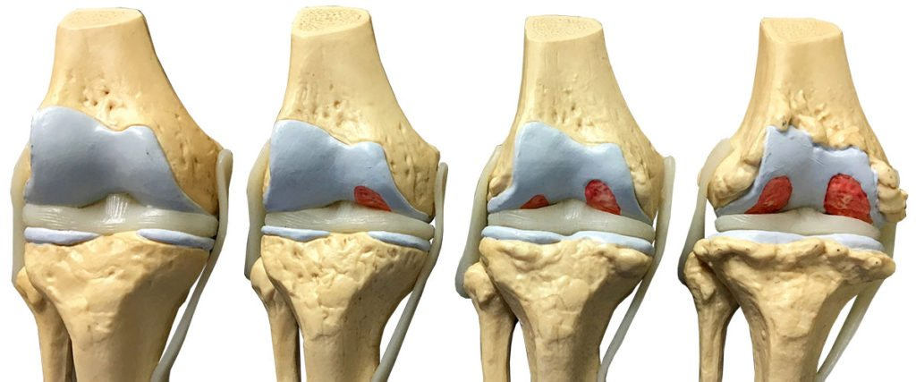 Плюсы и минусы эндопротезирования коленного сустава