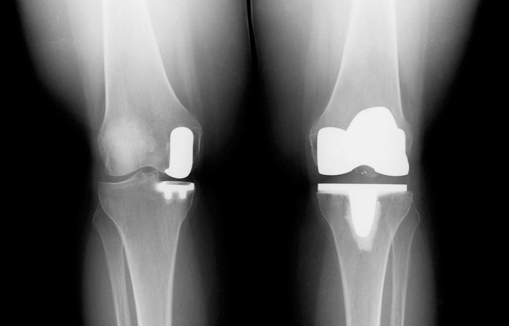 Современные эндопротезы суставов цены характеристики сроки службы