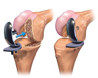 Изображение - Как выглядит искусственный коленный сустав %D1%87%D0%B0%D1%81%D1%82%D0%B8%D1%87%D0%BD%D0%BE%D0%B5