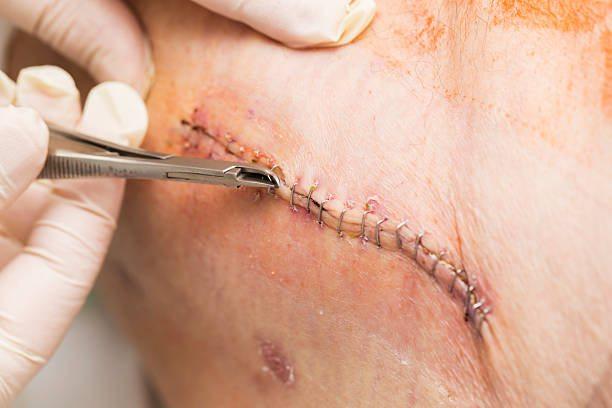 Реабилитация после операции при посттравматическом коксартрозе