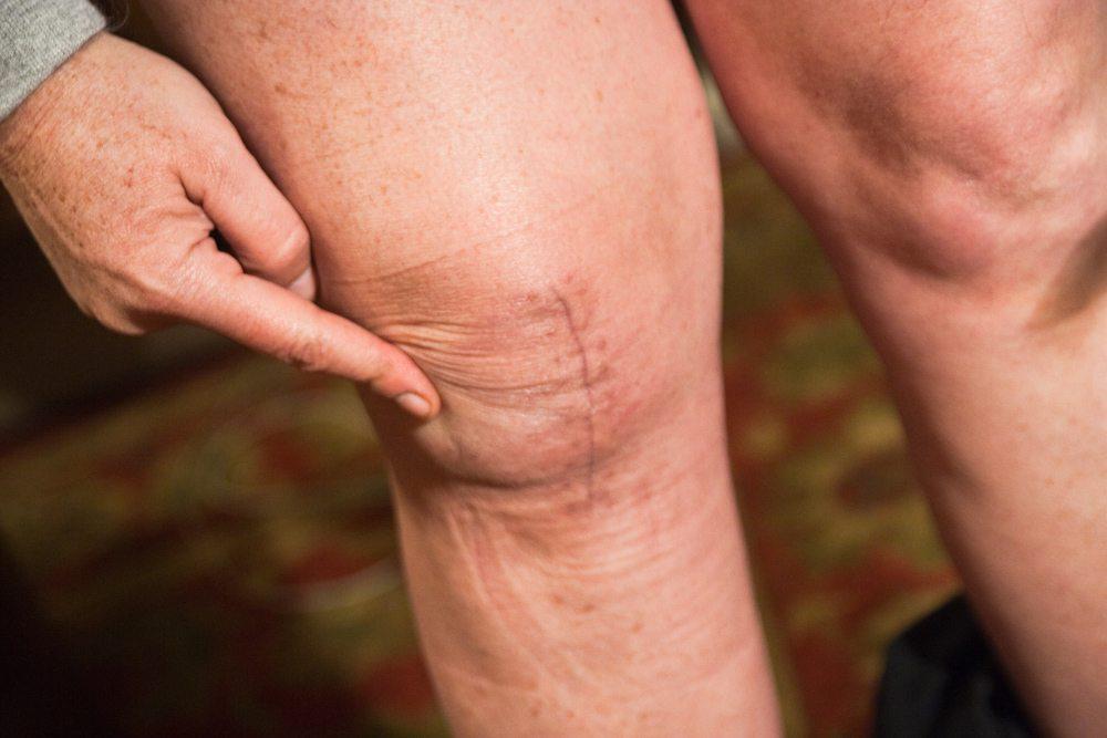 После эндопротезирования коленного сустава заболела здоровая нога thumbnail