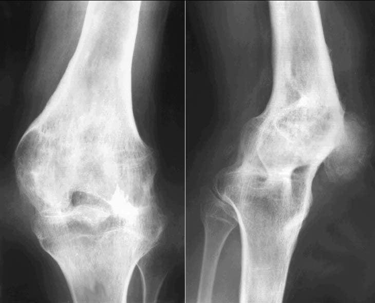 Кто перенес эндопротезирование коленного сустава