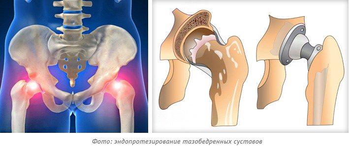 Замена коленного сустава в Германии