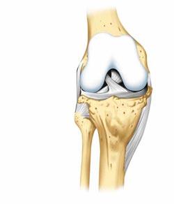 Противопоказания при лечении лазером суставов противопоказания