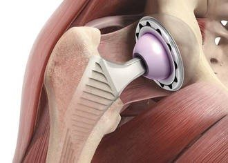 Срок службы тазобедренных эндопротезов