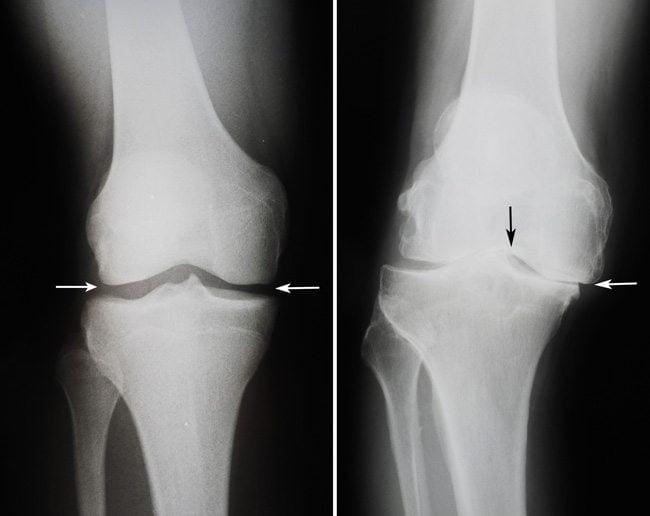 Как снять боль при гонартрозе коленного сустава народными средствами