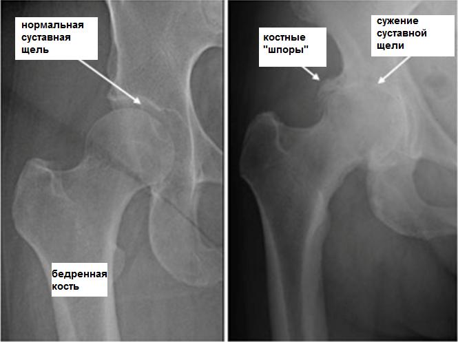Коксартроз: лечение тазобедренного сустава
