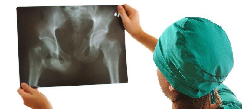 Деформирующий коксартроз тазобедренного сустава что это такое и как лечить