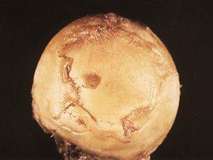 Изображение - Макеев лечение боли в тазобедренном суставе %D0%BD%D0%B5%D0%BA%D1%80%D0%BE%D0%B7-1
