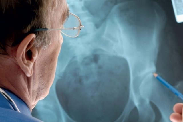 Деформирующий остеоартроз тазобедренного сустава 2 степени: лечение