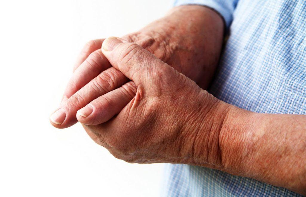 Эффективные народные средства от артрита обзор популярных методов лечения