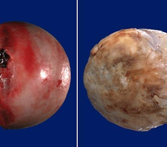 Изображение - Артрозо артрит суставов кистей 2017-07-08-18.05.24-1