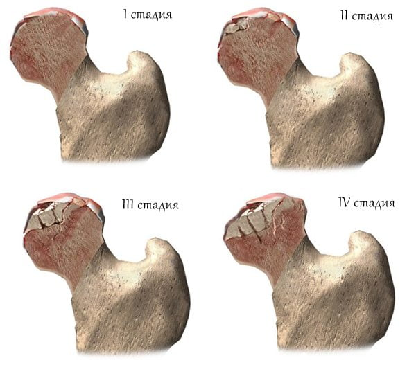 Упражнения от доктора Бубновского при артрозе тазобедренного сустава