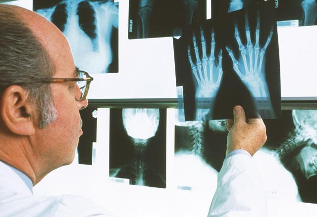 Остеофиты шейного отдела позвоночника лечение