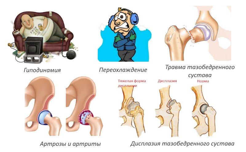 Изображение - Деформация тазобедренных суставов лечение admin-ajax.php_