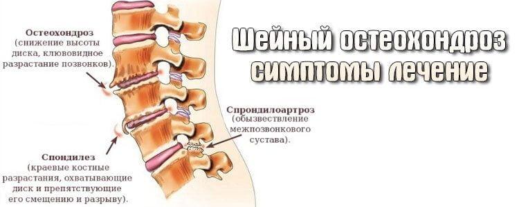 Приступы головокружения и тошноты при шейном остеохондрозе