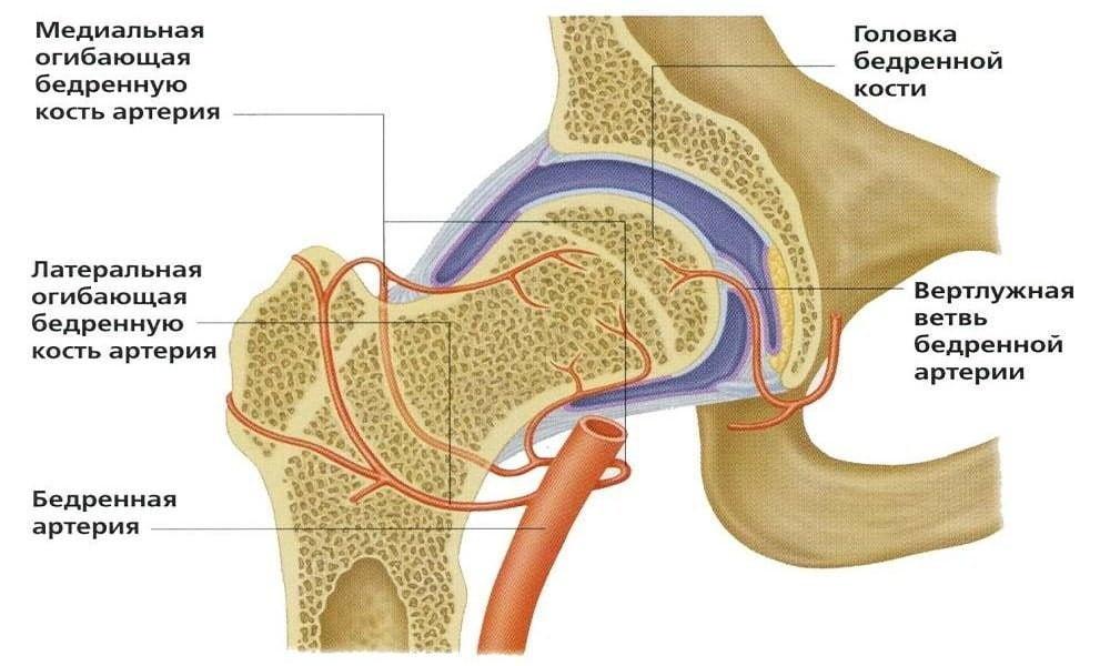 Изображение - Деформация тазобедренных суставов лечение koksartroz-2-stepeni-15_1_1