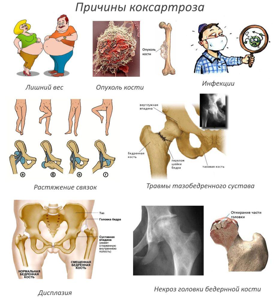 Изображение - Деформация тазобедренных суставов лечение prichiny-koksartroza-931x1024
