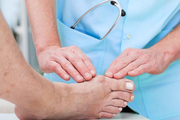 Как вылечить подагру на ногах: о чем важно знать пациенту