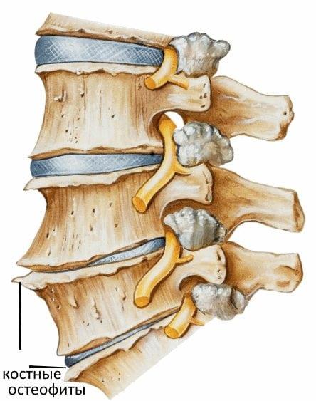 Остеохондроз шейного отдела и спондилез Лечение шейного отдела