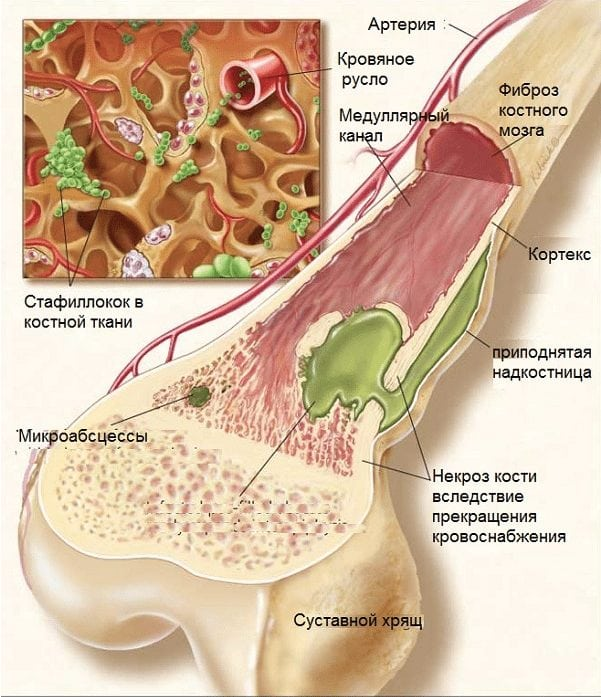 Лекарство от остеопороза остеомедом -