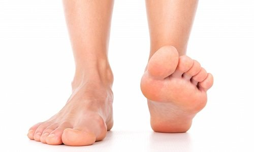 Плоскостопие у детей причины симтпомы осложнения и лечение