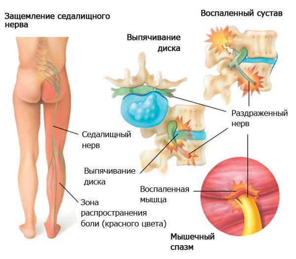 Дорсопатия поясничного отдела позвоночника особенности заболевания
