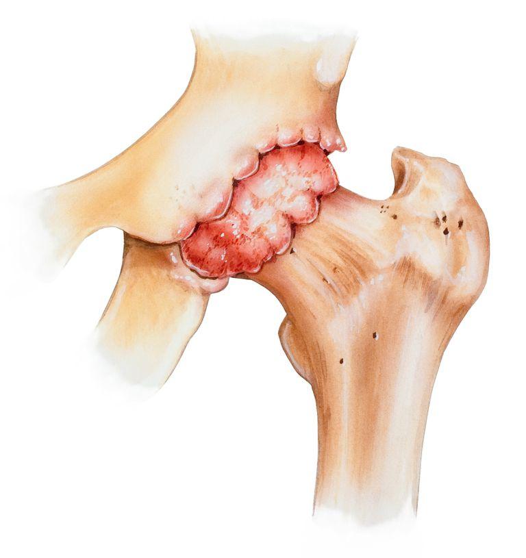 Что такое остеофиты коленного сустава и как их лечить