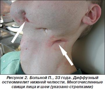 Остеомиелит. Симптомы, причины и лечение остеомиелита