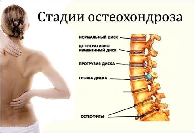 stalii-osteohondroza
