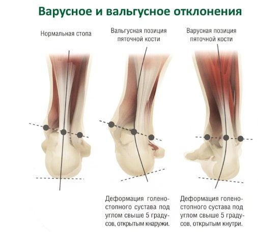 Варусная деформация стопы и ног у детей причины профилактика лечение