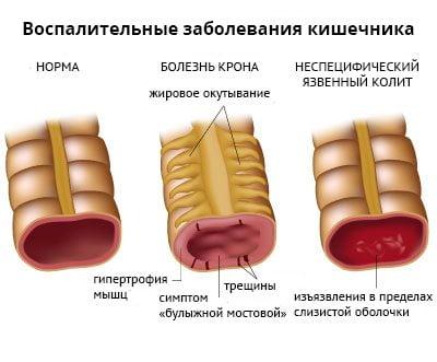 Сакроилеит при болезни бехтерева