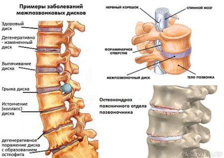 Зарядка и йога для здоровья спины при шейно-грудном остеохондрозе: упражнения по Бубновскому и Шишонину