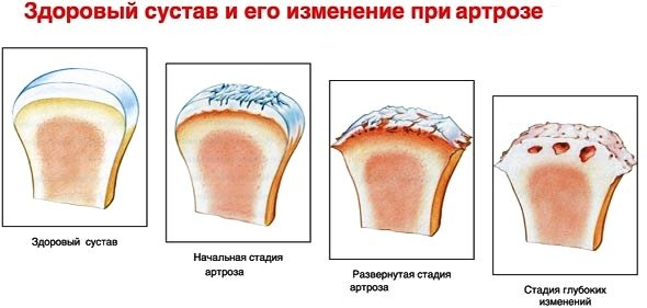 Миорелаксанты при остеоартрозе плечевого сустава